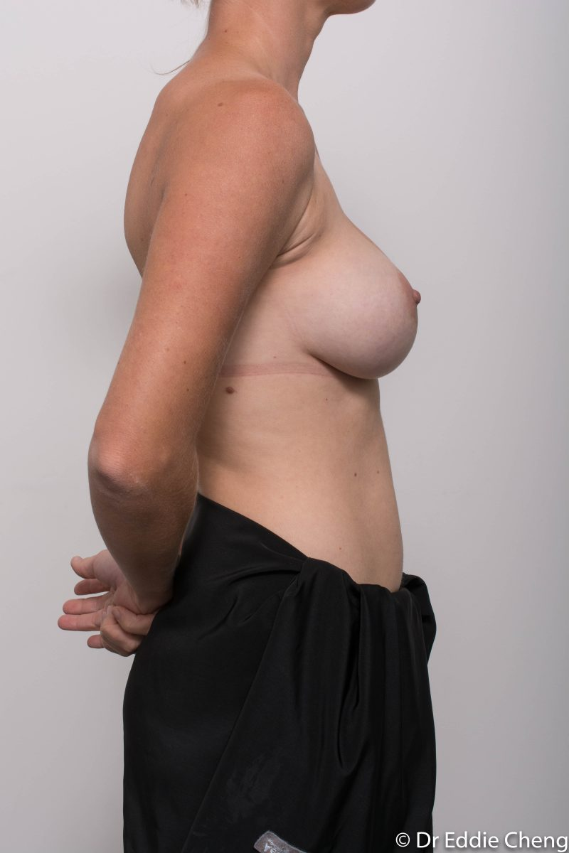 Breast-Augmentation-Post-Op-12-months-Accessory-breast-tissue-400cc-10-800x1200