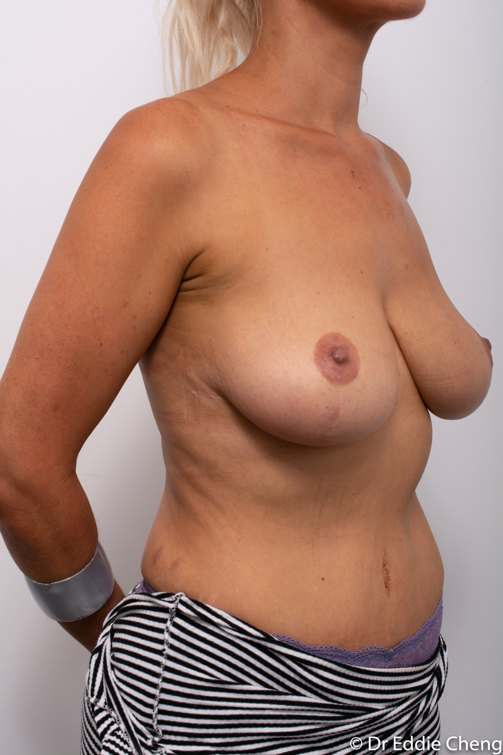 breast reduction augmentation brisbane by Dr Eddie cheng-1-2-1