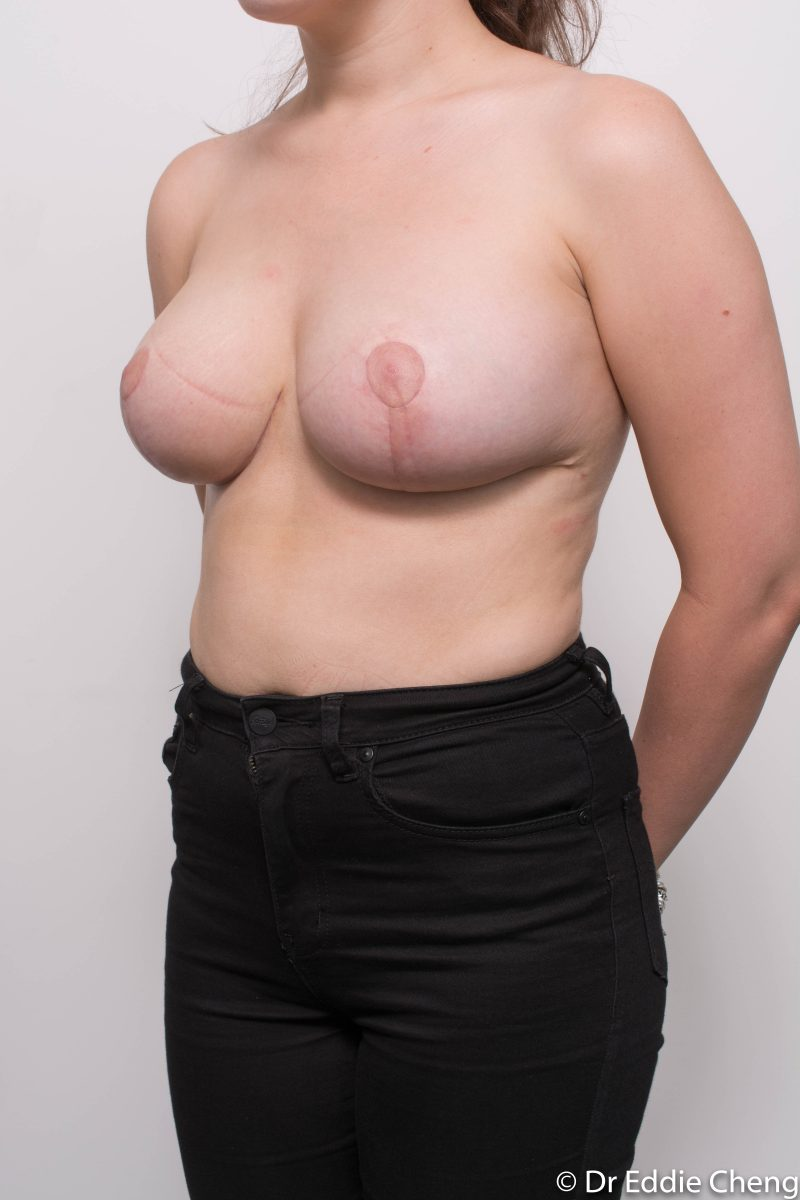 breast-reduction-post-op-6-weeks-6-52-2-800x1200
