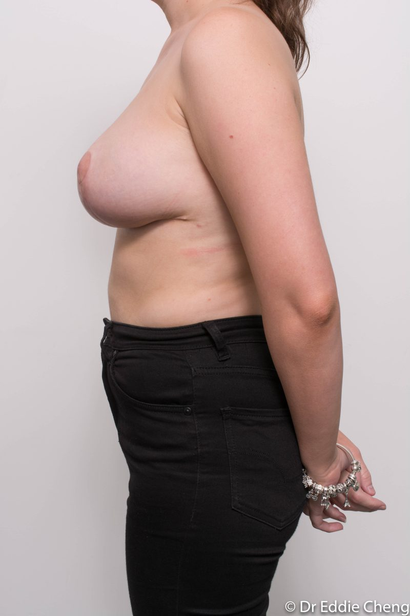 breast-reduction-post-op-6-weeks-6-52-3-800x1200