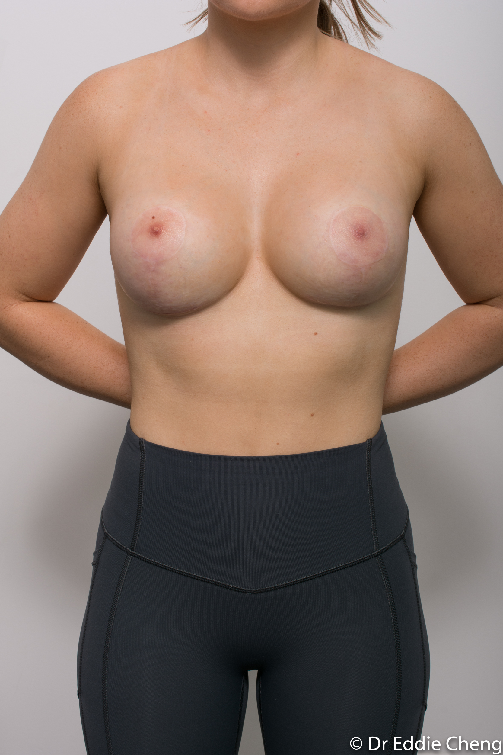 2 stage procedure tuberous breasts dr eddie cheng brisbane surgeon pre and post operative images -1-2