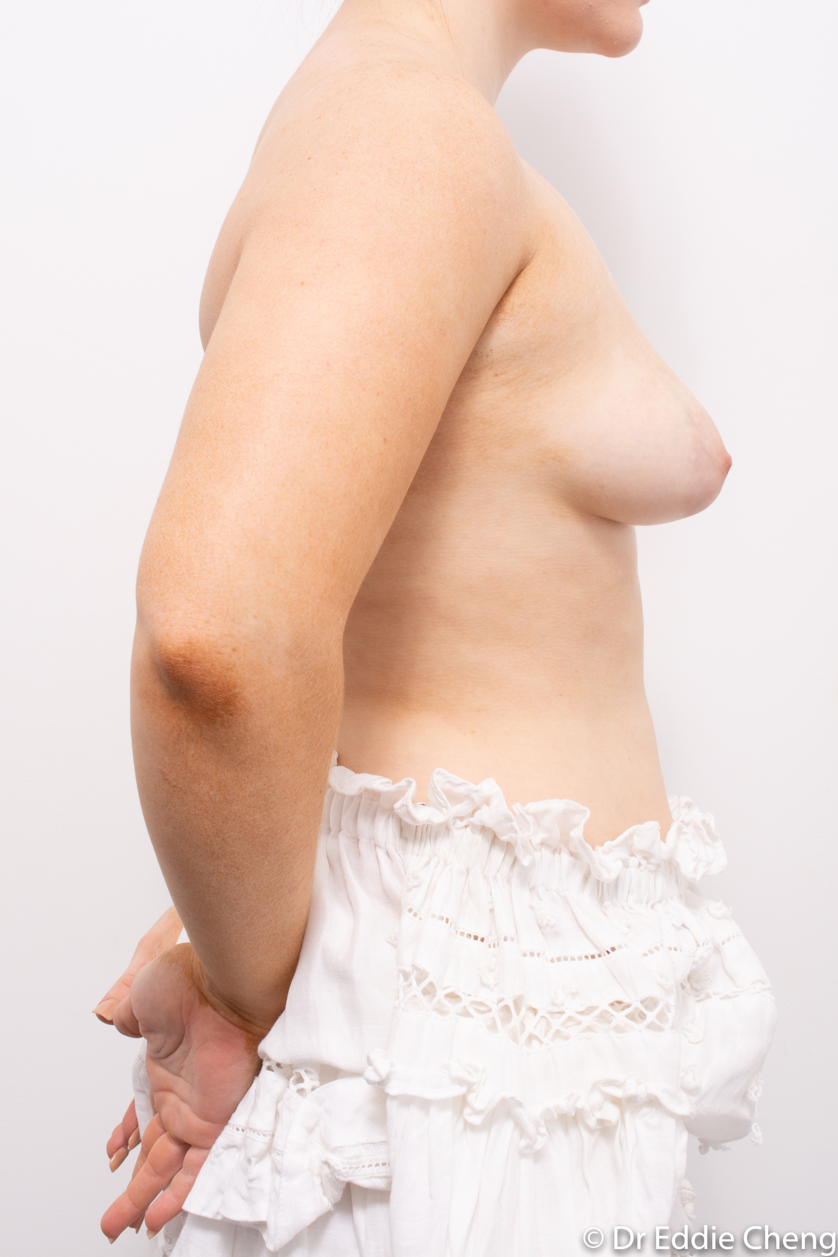 2 stage procedure tuberous breasts dr eddie cheng brisbane surgeon pre and post operative images -1