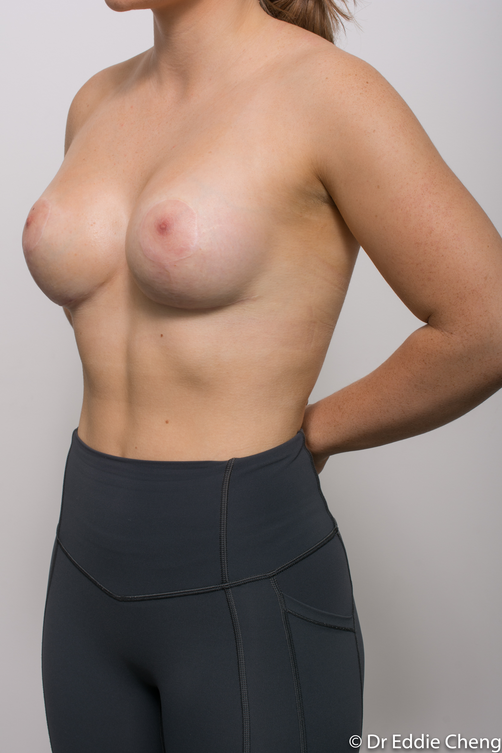 2 stage procedure tuberous breasts dr eddie cheng brisbane surgeon pre and post operative images -2-2