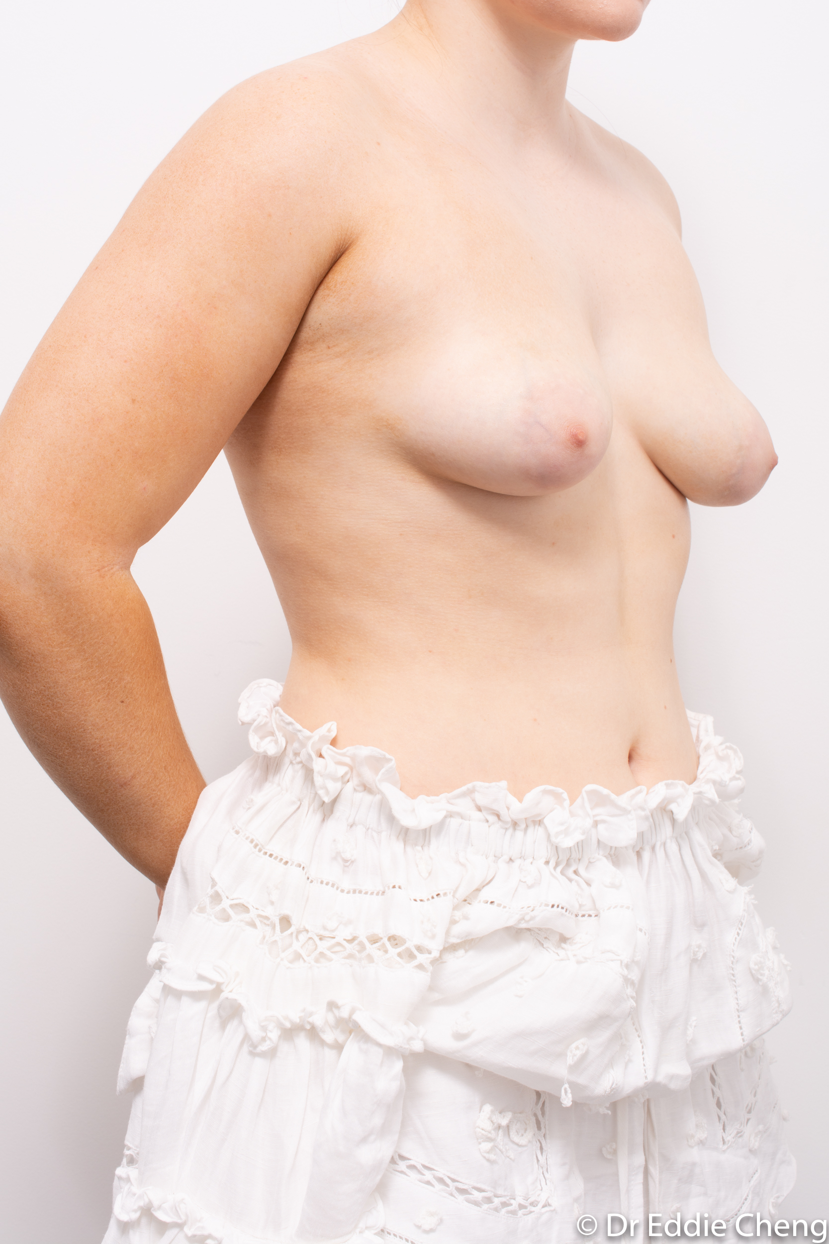 2 stage procedure tuberous breasts dr eddie cheng brisbane surgeon pre and post operative images -2