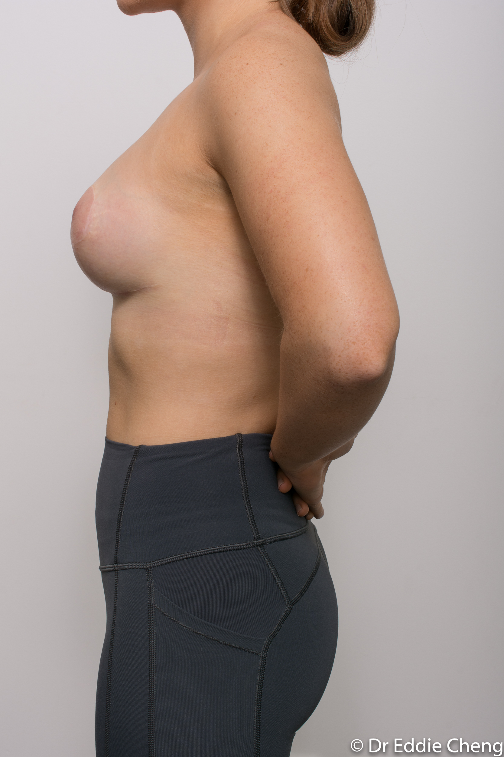 2 stage procedure tuberous breasts dr eddie cheng brisbane surgeon pre and post operative images -3-2