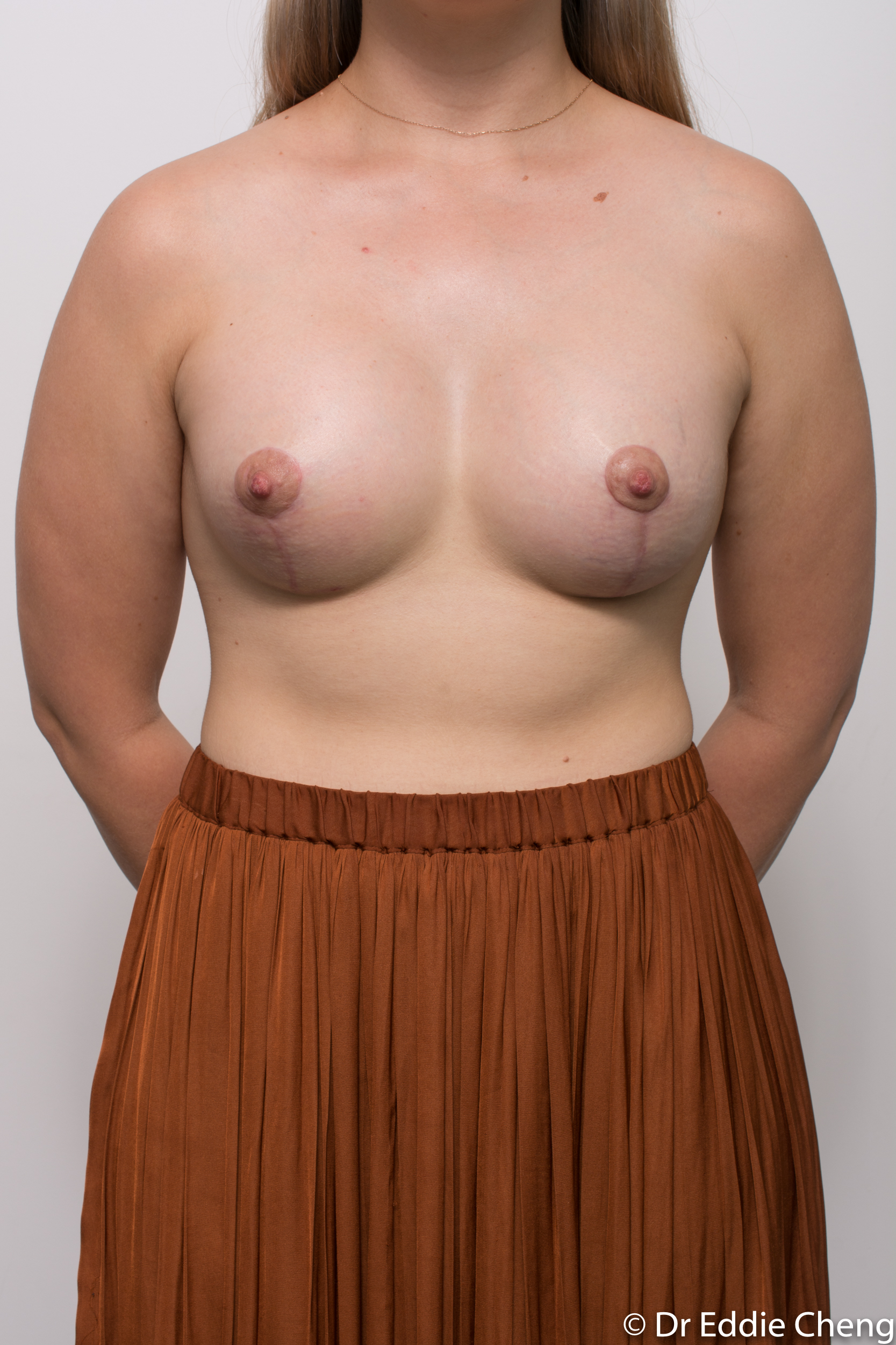 2 stage procedure tuberous breasts dr eddie cheng brisbane surgeon pre and post operative images -3-3