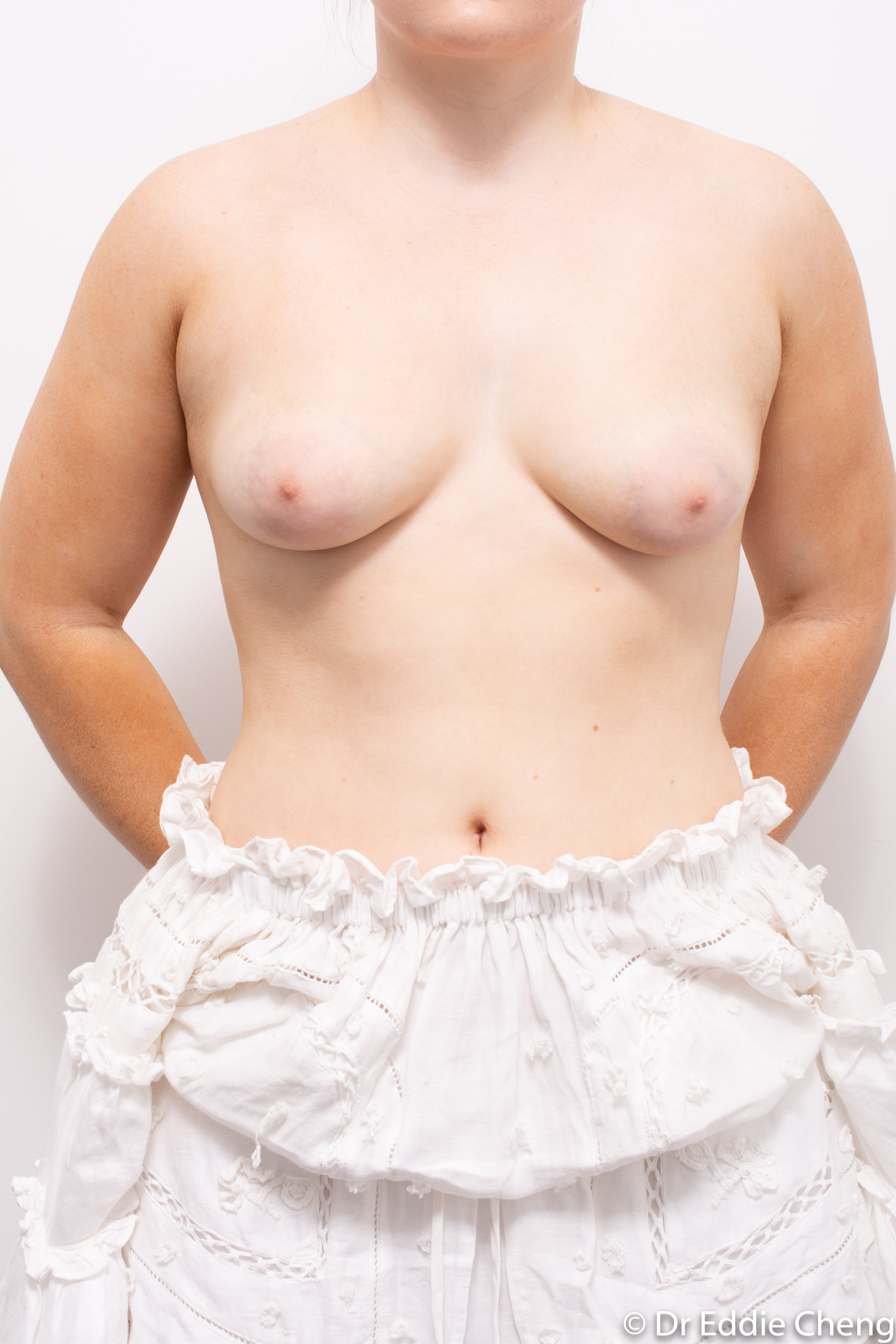 2 stage procedure tuberous breasts dr eddie cheng brisbane surgeon pre and post operative images -3