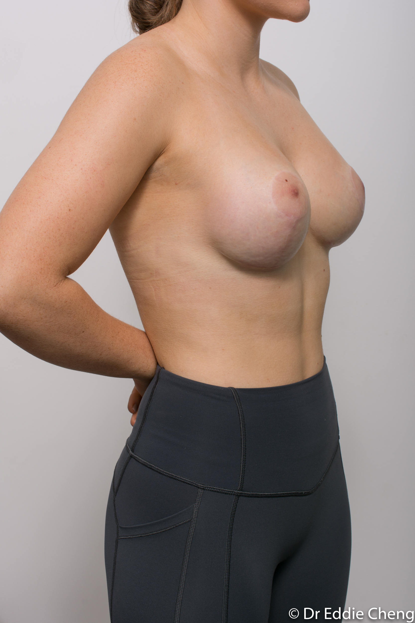2 stage procedure tuberous breasts dr eddie cheng brisbane surgeon pre and post operative images -4-2