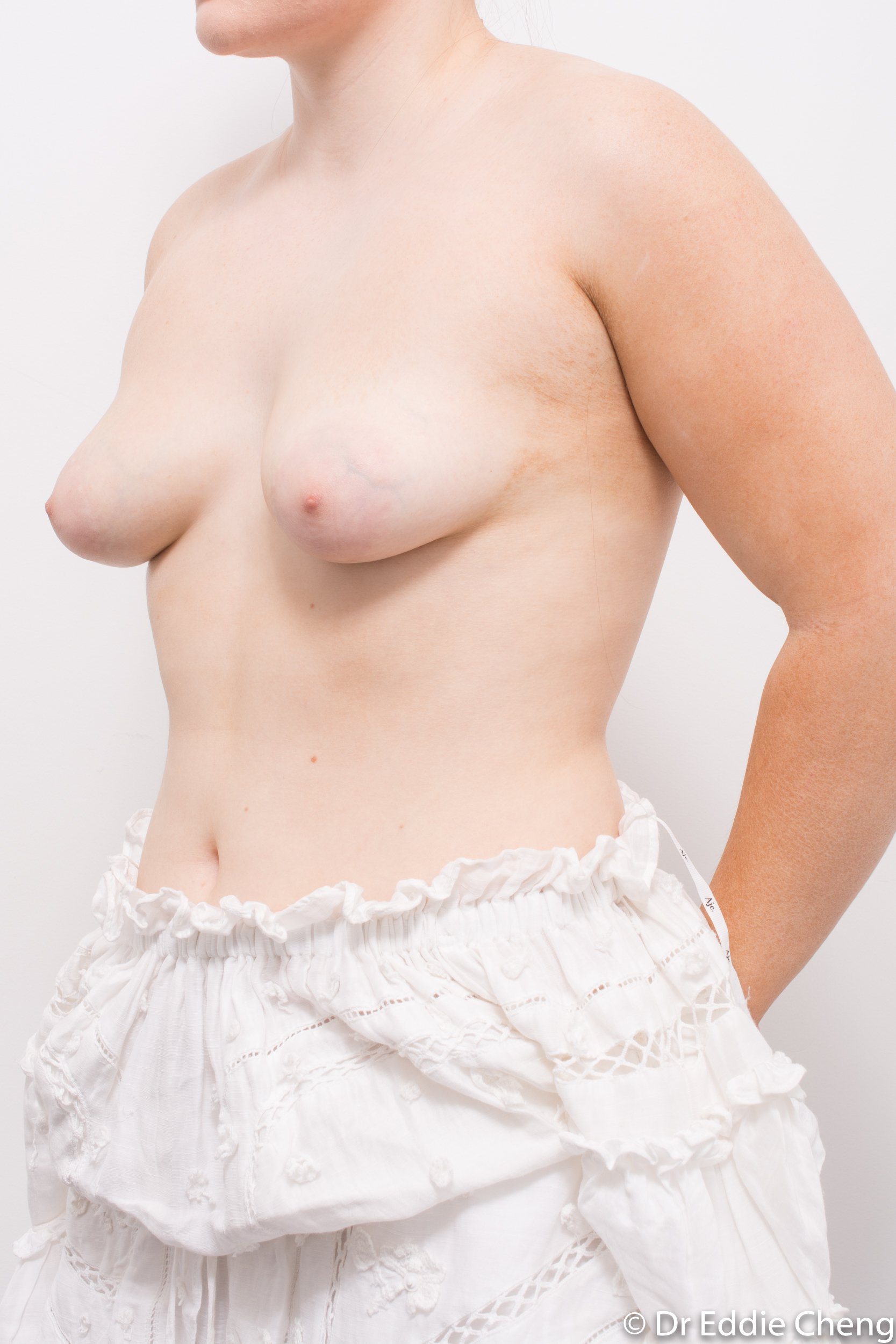 2 stage procedure tuberous breasts dr eddie cheng brisbane surgeon pre and post operative images -4