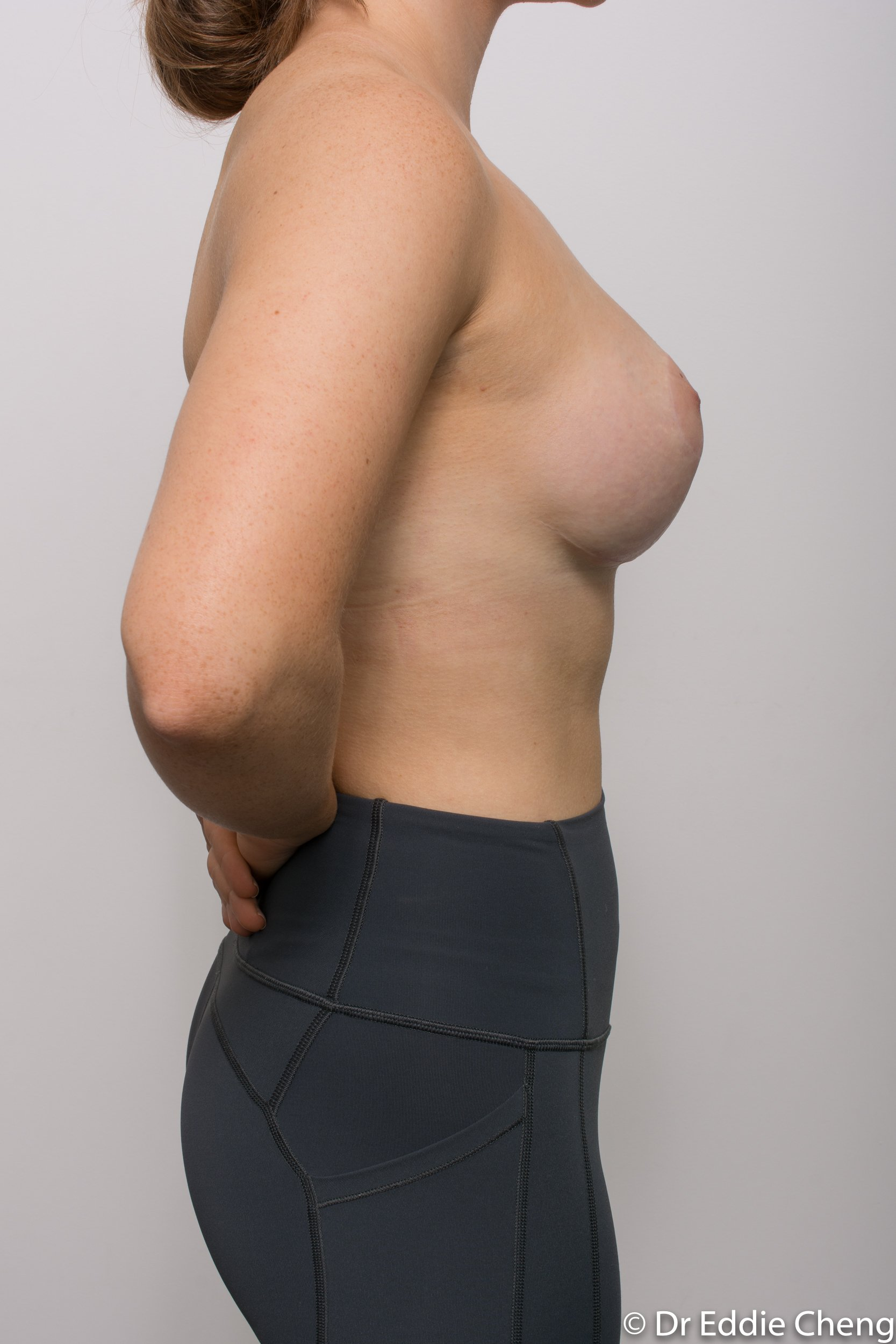 2 stage procedure tuberous breasts dr eddie cheng brisbane surgeon pre and post operative images -5-2