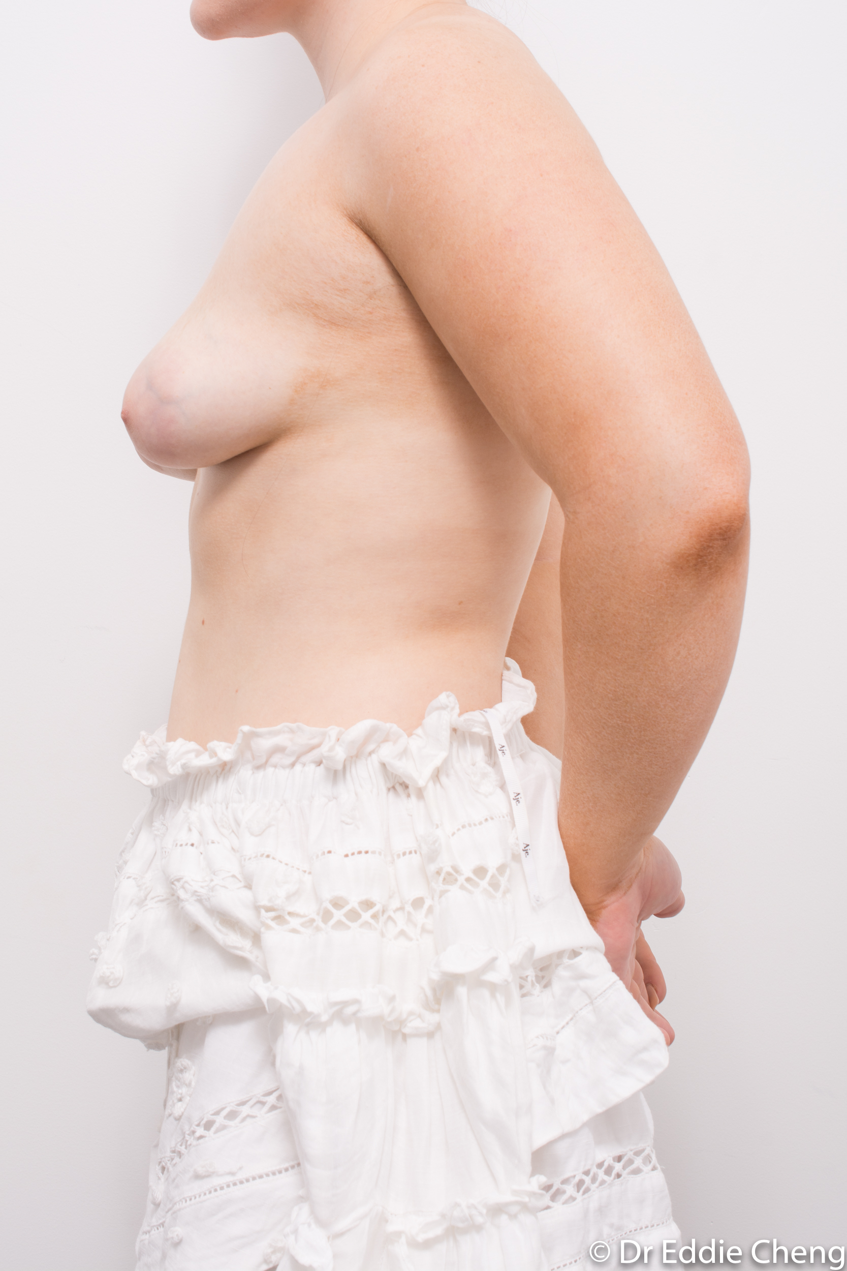 2 stage procedure tuberous breasts dr eddie cheng brisbane surgeon pre and post operative images -5