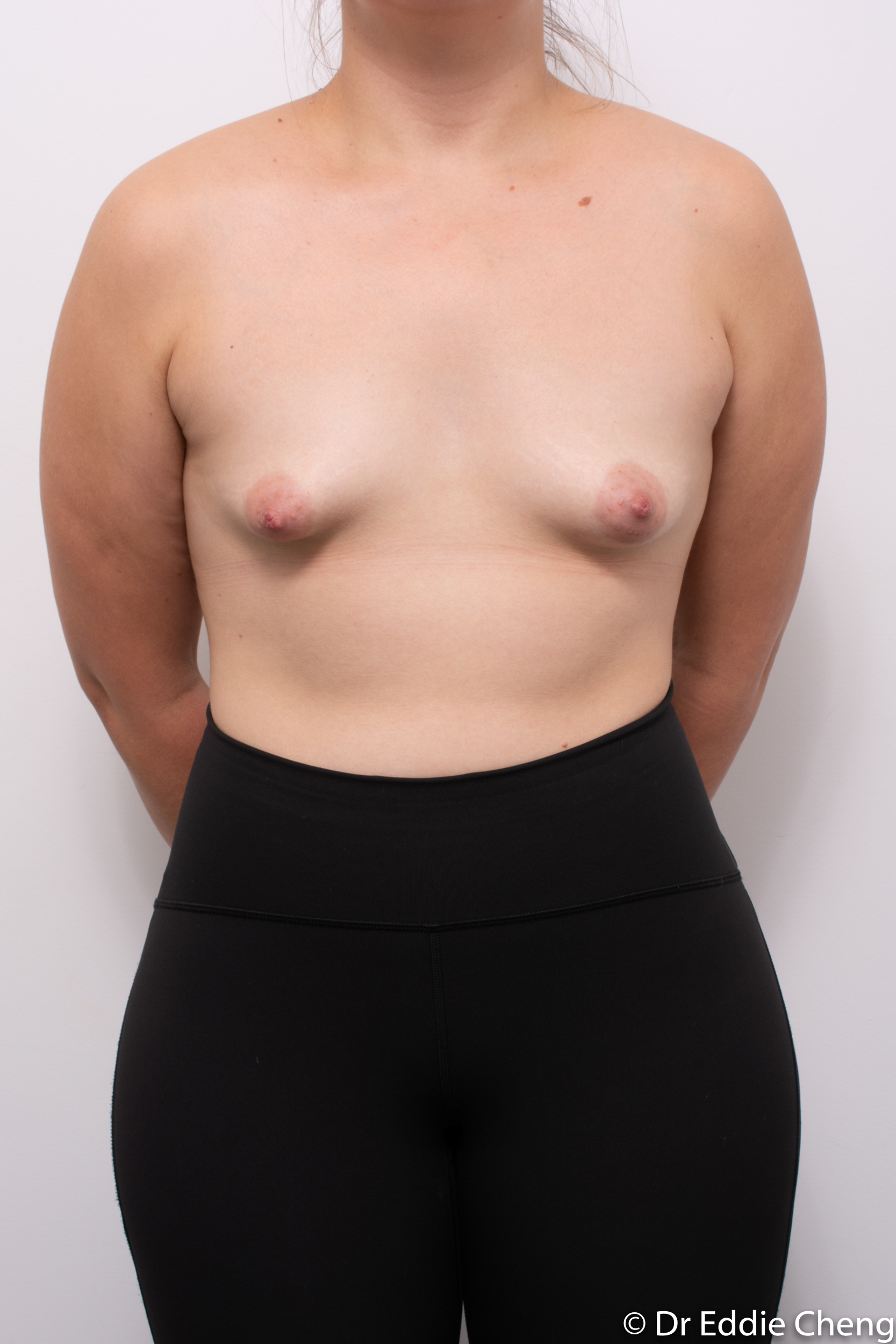 2 stage procedure tuberous breasts dr eddie cheng brisbane surgeon pre and post operative images -7-2