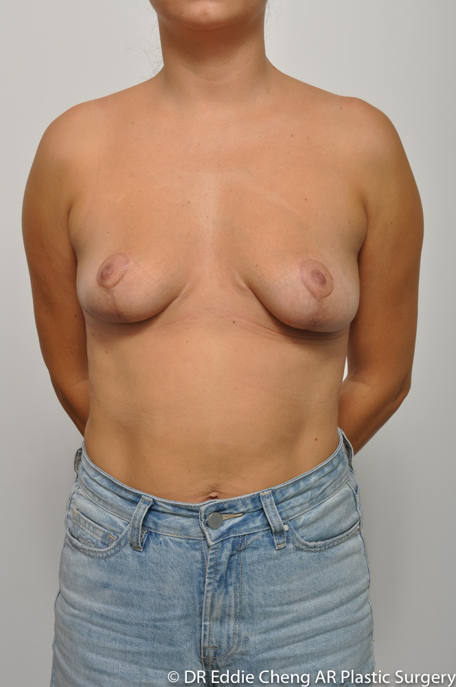 3-12-BILATERAL-BREAST-REDUCTION-POST-Dr_Eddie_Cheng_Specialist_Plastic_Surgeon_Brisbane-006