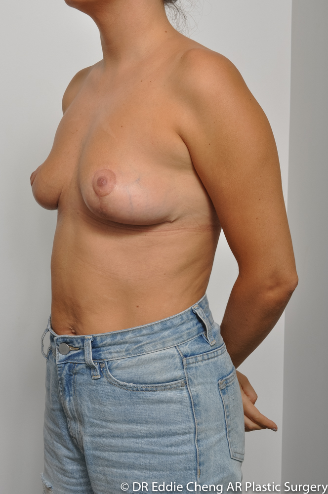3-12-BILATERAL-BREAST-REDUCTION-POST-Dr_Eddie_Cheng_Specialist_Plastic_Surgeon_Brisbane-007