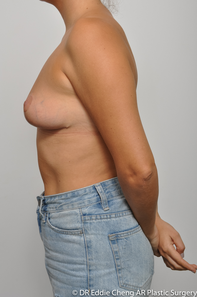 3-12-BILATERAL-BREAST-REDUCTION-POST-Dr_Eddie_Cheng_Specialist_Plastic_Surgeon_Brisbane-008