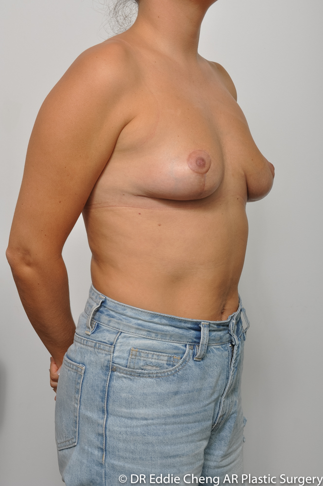 3-12-BILATERAL-BREAST-REDUCTION-POST-Dr_Eddie_Cheng_Specialist_Plastic_Surgeon_Brisbane-009