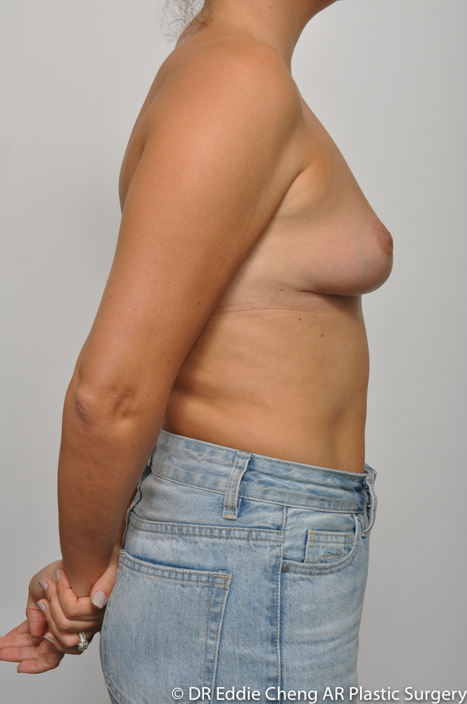 3-12-BILATERAL-BREAST-REDUCTION-POST-Dr_Eddie_Cheng_Specialist_Plastic_Surgeon_Brisbane-010
