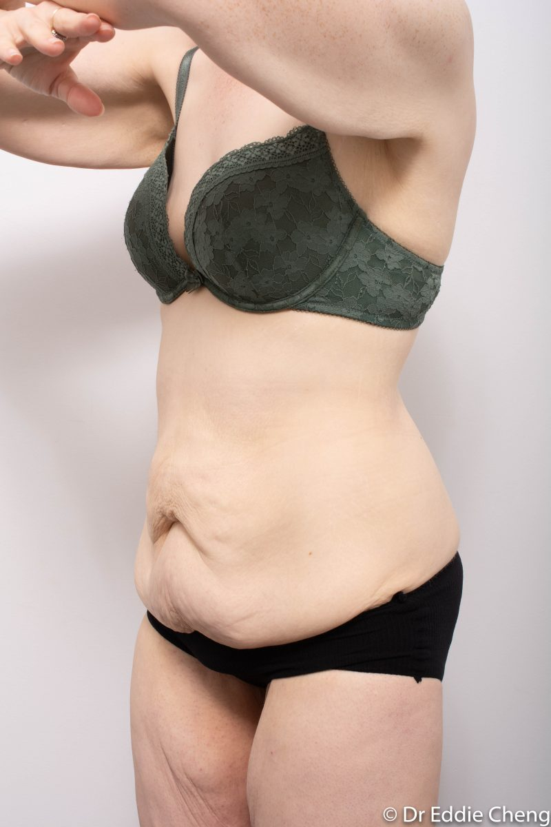 312-post-abdominoplasty-3-800x1200
