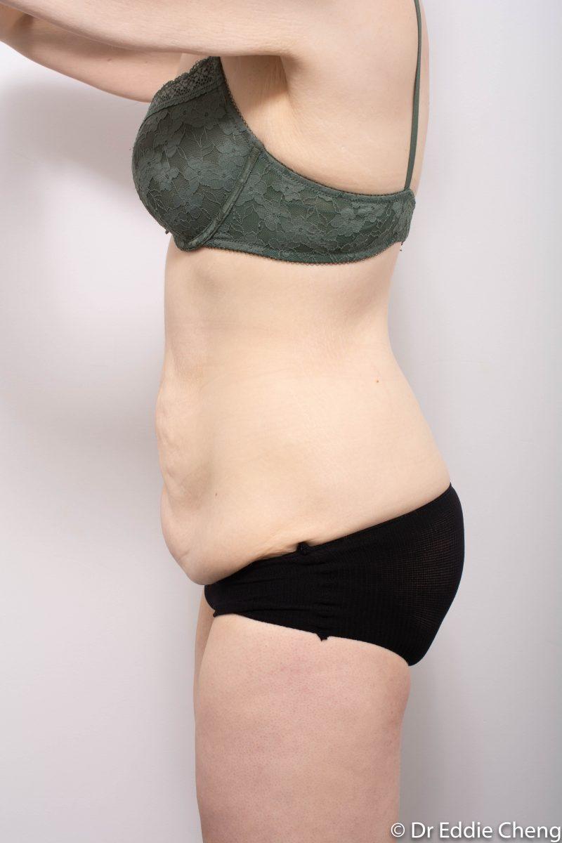 312-post-abdominoplasty-4-800x1200
