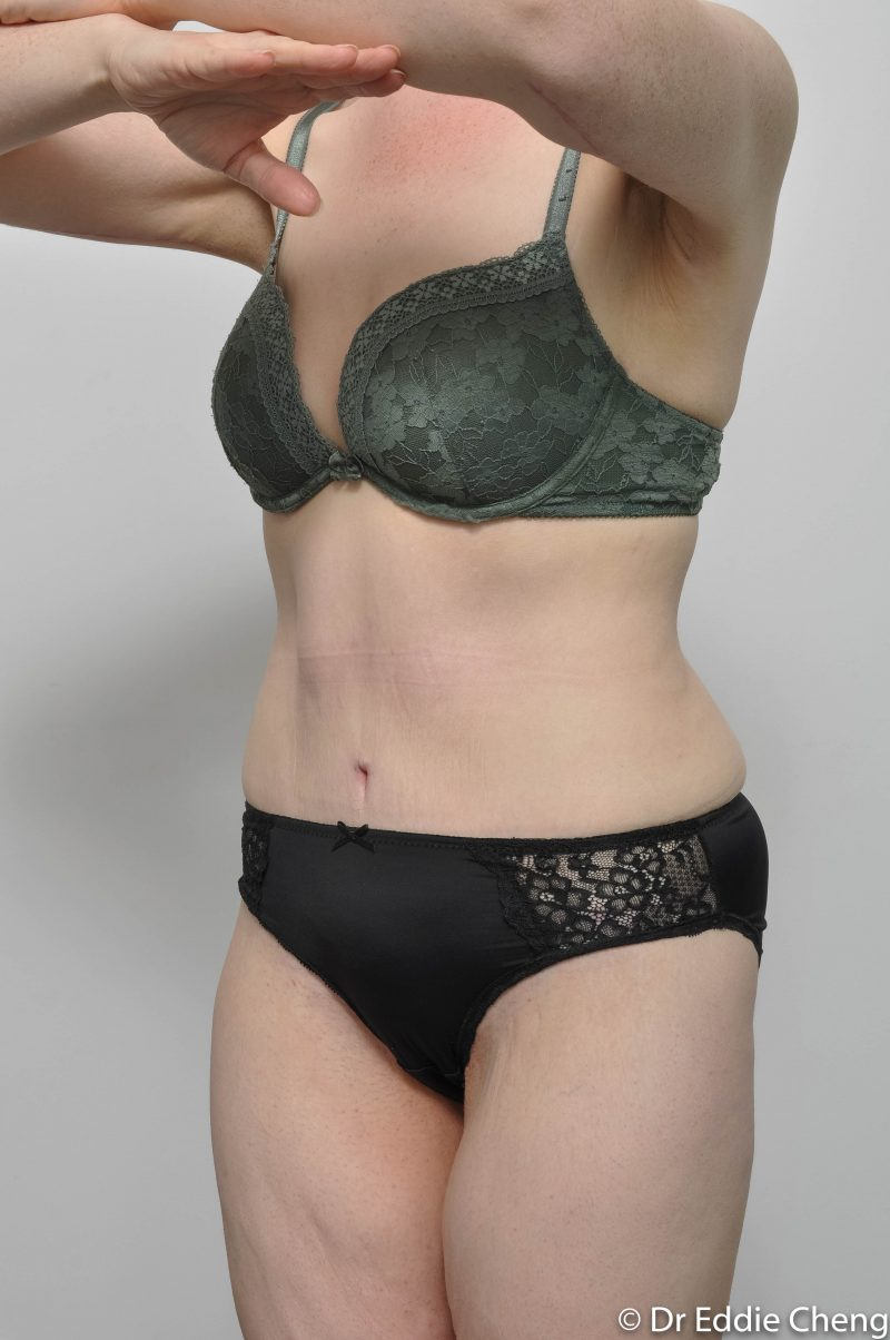 312-post-abdominoplasty-5-800x1204