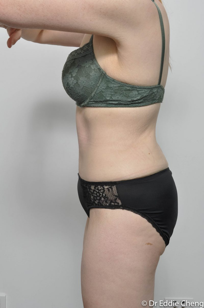 312-post-abdominoplasty-6-800x1204