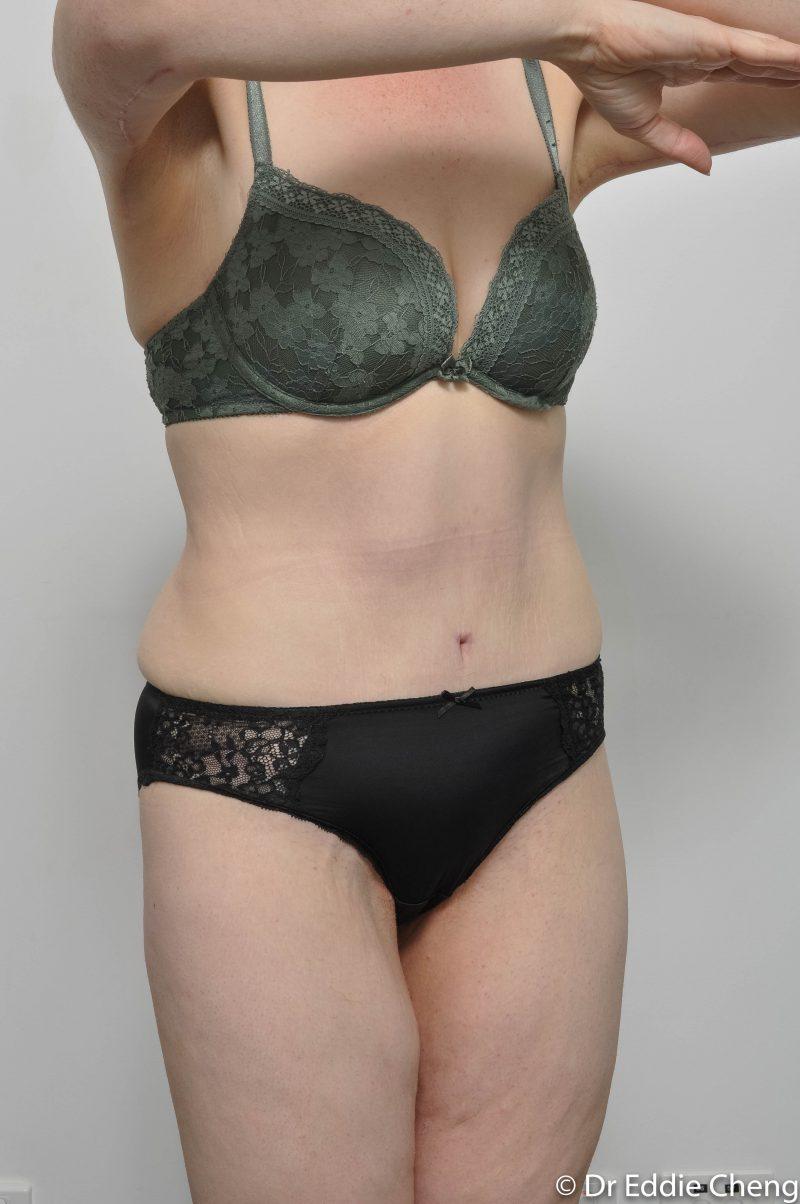 312-post-abdominoplasty-7-800x1204