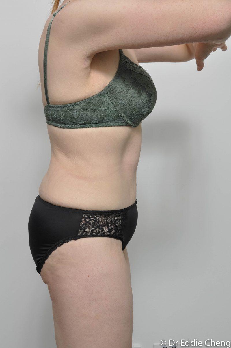 312-post-abdominoplasty-8-800x1204