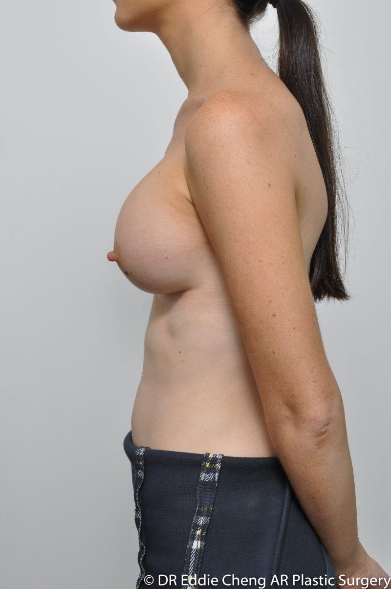 8-12-455CC-UHP-BAM-POST-Dr_Eddie_Cheng_Specialist_Plastic_Surgeon_Brisbane-008-800x1204