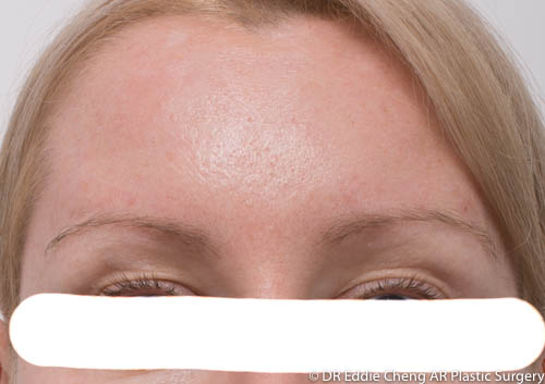 Anti Wrinkle Treatment