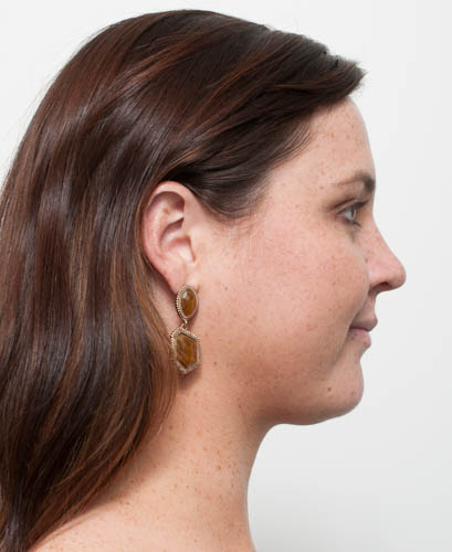 Double Chin Fat Treatment