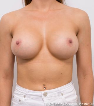 4 months after 350cc smooth round breast implants, subpectoral dual plane pocket, inframammary incision.