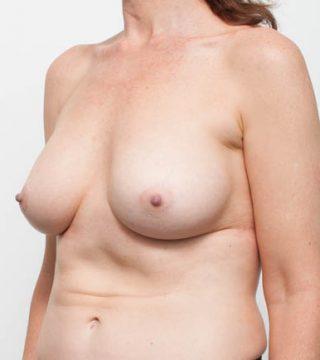 AR-Plastic Surgery