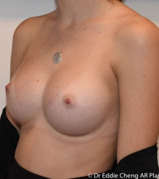 19 yo L350cc R 400cc breast implants, submuscular dual plane pocket, inframammary incision.