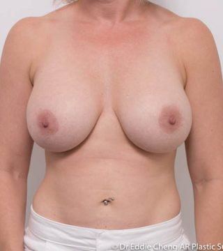 4 months after Left 450cc R 425cc breast implants, submuscular dual plane, inframammary incision.