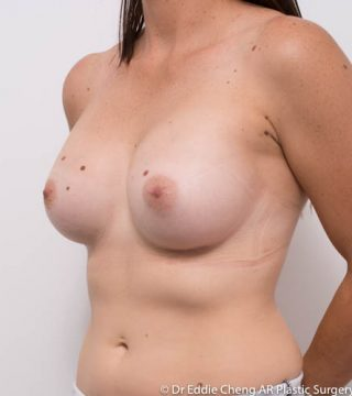 D Cup Bra, 400cc moderate plus smooth rounds breast implants, submuscular dual plane pocket, inframammary fold incision.
