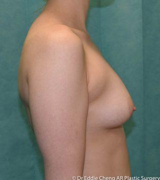 24 yo, bra size b/c.