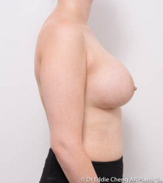 10 Months post op, bra 10DD, 400cc smooth round, submuscular dual plane pocket, inframammary incision.