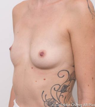3 Children, right breast A cup, left breast B cup, accessory nipple