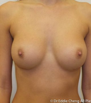 10 months after 300cc breast implants, sub-muscular dual plane pocket, inframammary incision.