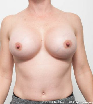 Enhanced look 500cc high profile smooth round implants, submuscular dual plane pocket, inframammary incision.