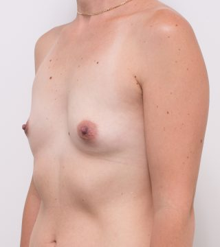 Moderate Plus Breast Augmentation