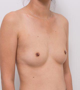High Profile Breast Augmentation