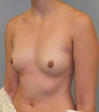 Bilateral Breast Augmentation