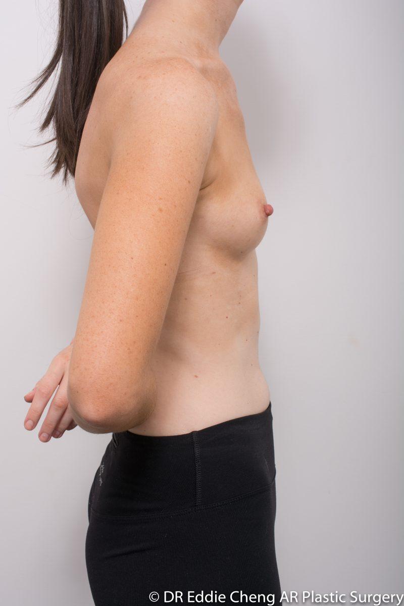 BILATERAL-Breast-Augmentation-PRE-Dr_Eddie_Cheng_Specialist_Plastic_Surgeon_Brisbane-001-800x1200
