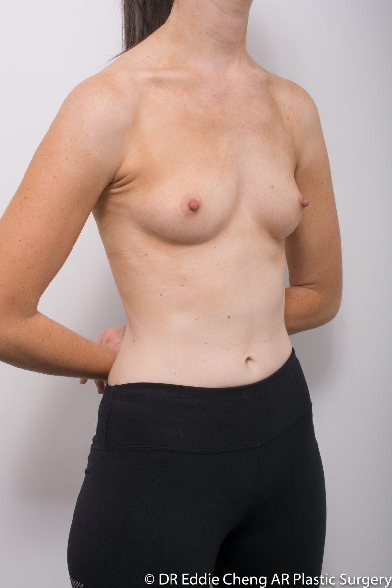 BILATERAL-Breast-Augmentation-PRE-Dr_Eddie_Cheng_Specialist_Plastic_Surgeon_Brisbane-002-800x1200