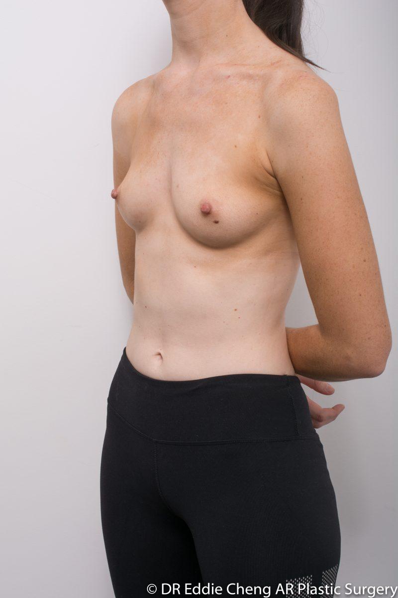 BILATERAL-Breast-Augmentation-PRE-Dr_Eddie_Cheng_Specialist_Plastic_Surgeon_Brisbane-004-800x1200