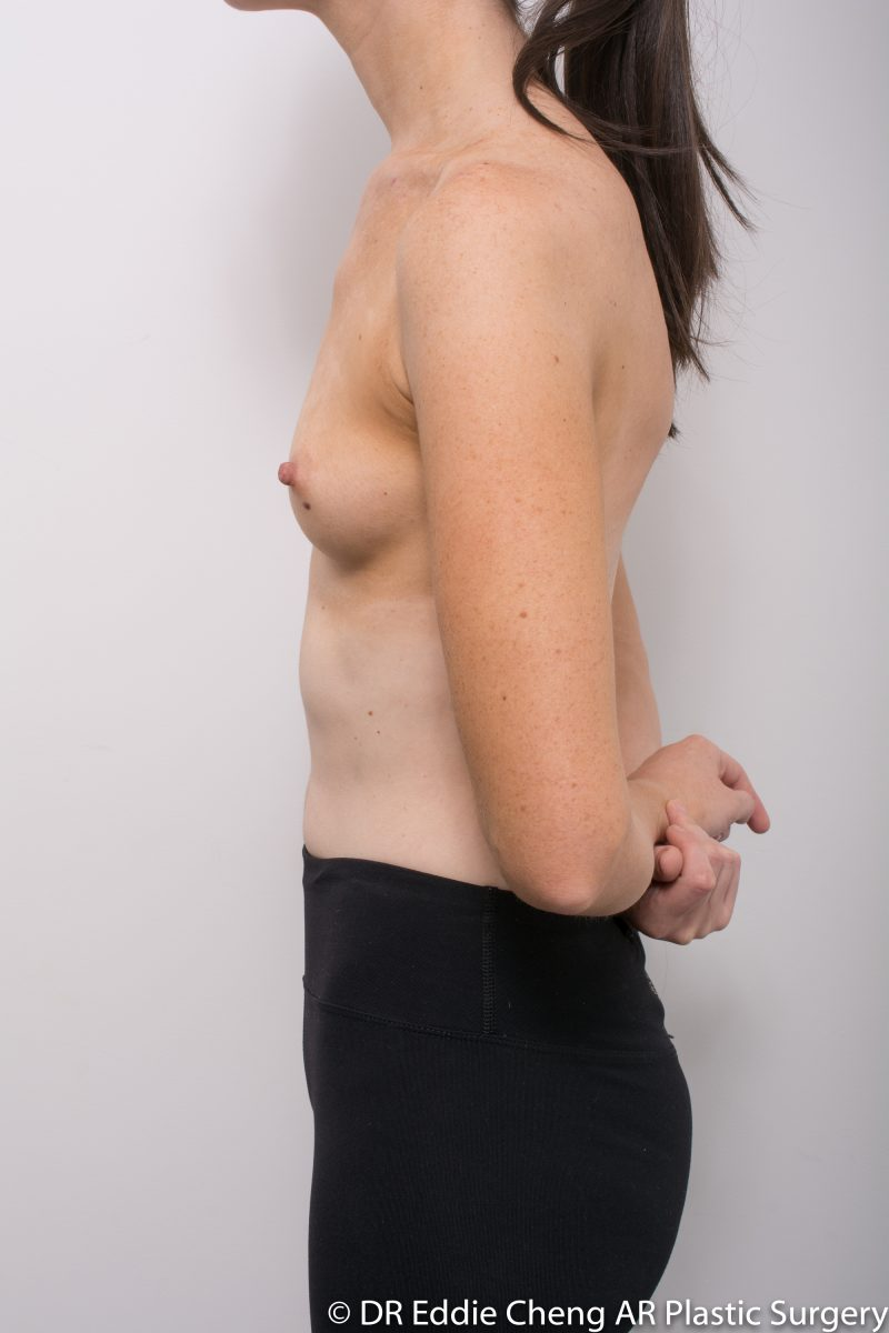 BILATERAL-Breast-Augmentation-PRE-Dr_Eddie_Cheng_Specialist_Plastic_Surgeon_Brisbane-005-800x1200