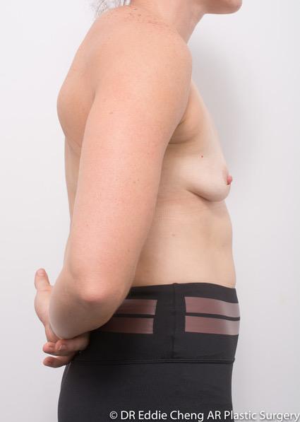 Bilateral-Breast-Augmentation-PRE-OP-Dr_Eddie_Cheng_Specialist_Plastic_Surgeon_Brisbane-001 (1)