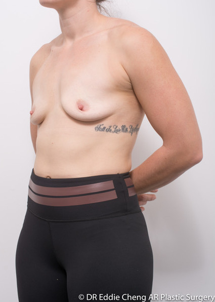 Bilateral-Breast-Augmentation-PRE-OP-Dr_Eddie_Cheng_Specialist_Plastic_Surgeon_Brisbane-004