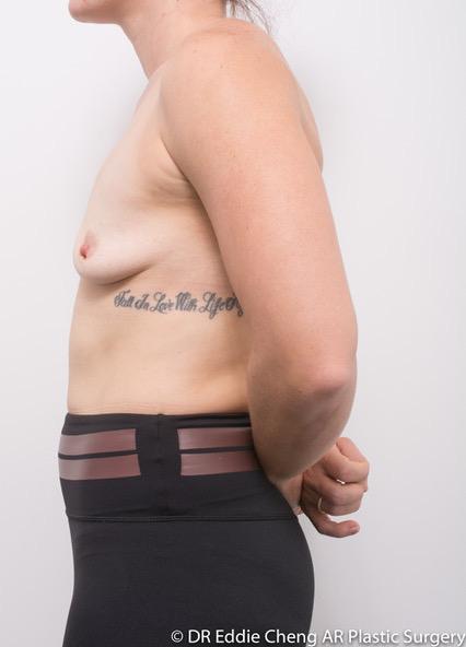 Bilateral-Breast-Augmentation-PRE-OP-Dr_Eddie_Cheng_Specialist_Plastic_Surgeon_Brisbane-005